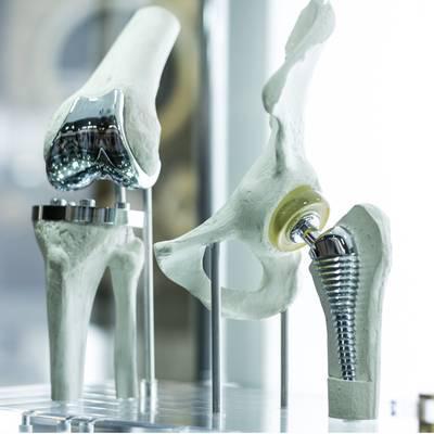 Knie-Totalendoprothesen: Management für bestesErgebnis