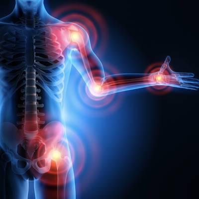 Somatoforme Schmerzstörungen