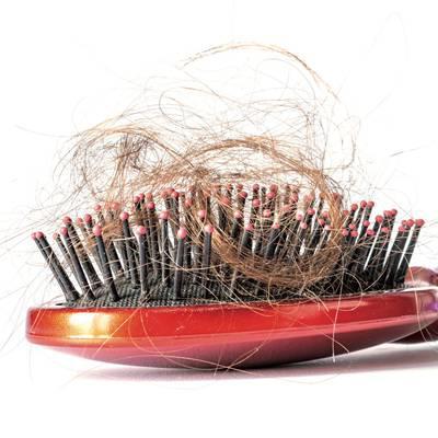 Therapieoptionen bei Haarausfall