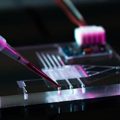 Lab-on-a-Chip: Kleines Labor, große Wirkung