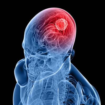 Ein Tumor im Gehirn