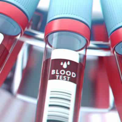 Neue Bluttests bei Brustkrebs, Alzheimer und Aspergillen