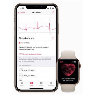 EKG-Dokumentation